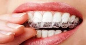 teeth-grinding-mouthguard